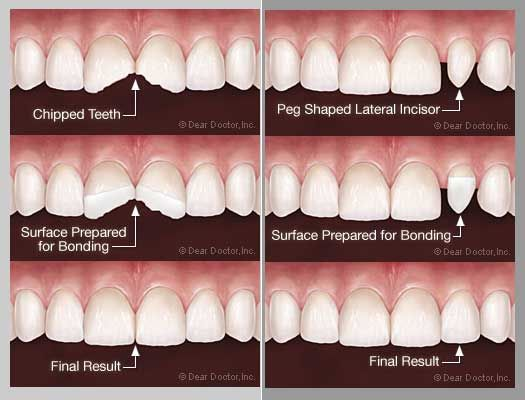 dental bonding chipped tooth - photo #17
