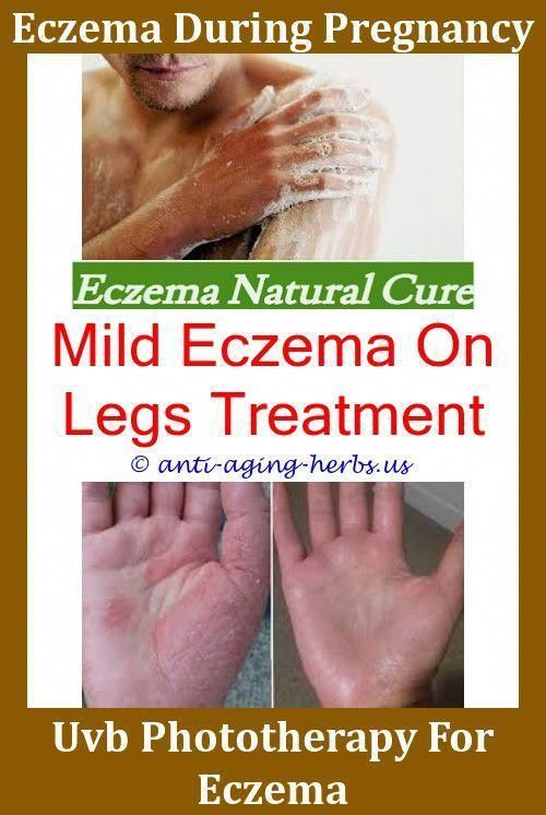 Skin Eczema Treatment How To Stop Eczema Itching On Hands