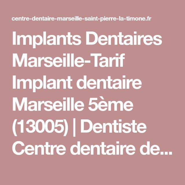 Implants Dentaires Marseille-Tarif Implant dentaire Marseille 5ème (13005) | Dentiste Centre dentaire de Marseille Saint Pierre-La Timone