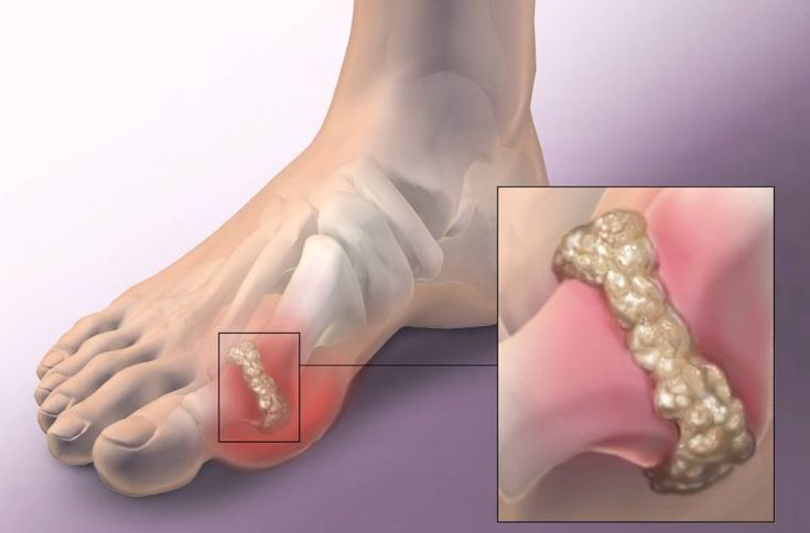 How To Remove Gout & Joint Pain From Your Life (Uric Acid & Crystals)