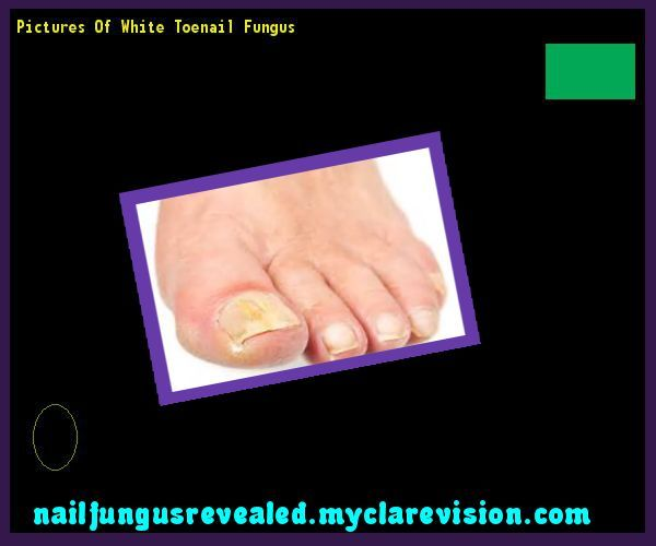 Pictures of white toenail fungus  Nail Fungus Remedy. You have nothing to lose!