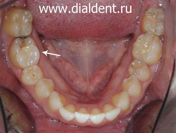 кариес на ранее (10 лет назад) депульпированном и восстановленном вкладкой зубе