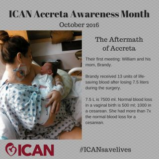 Normal blood loss in a vaginal birth: 500 ml  Normal blood loss in a cesarean: 1000 ml  Blood loss in an accreta cesarean: 7500 ml  #ICANsavelives