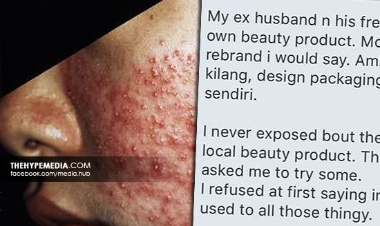 Produk Kecantikan Terkenal Tempatan Ada Merkuri! 'Taubat Dah, Tak Nak Guna Local Beauty Product!'