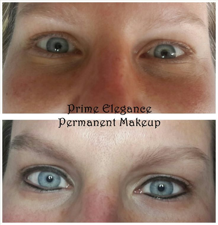 Permanent eyeliner immediately after first procedure. The lines and colour will appear darker and more prominent than what is expected at the final outcome. With healing, the colour and lines will fade into a softer, natural looking eyeliner. At the touchup, we can decide if we should go darker and thicker.