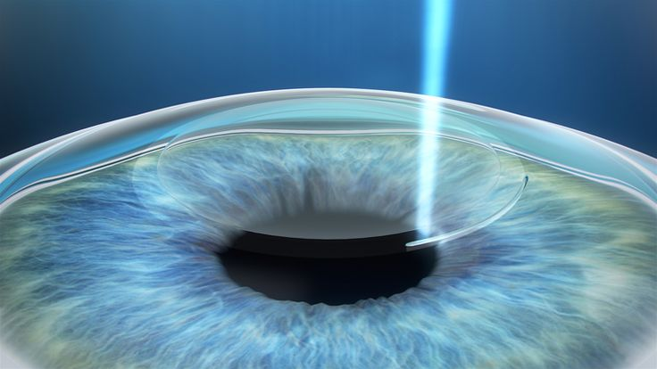What is Lasik Eye Surgery? Lasik eye surgery is one of the most common forms of surgeries to obtain clearer, sharper vision. The process…