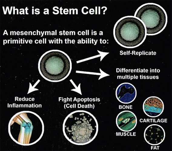 Stem cell therapy for Morton's neuroma