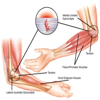 Forearm Tendonitis Natural Treatment