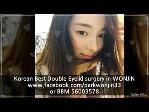 Wonjin Plastic Surgery For Asian Eyelid Surgery