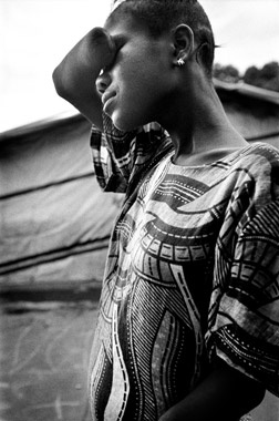 A young female former child soldier of the Revolutionary United Front lost her hand when RUF rebels chopped it off. The RUF was notorious for severing the limbs of those victims it did not murder, particularly children. Abducted child soldiers committed most of the atrocities.