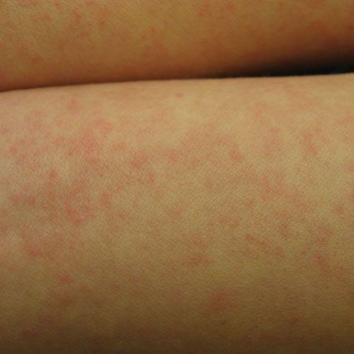 Best Natural Antihistamine For Hives