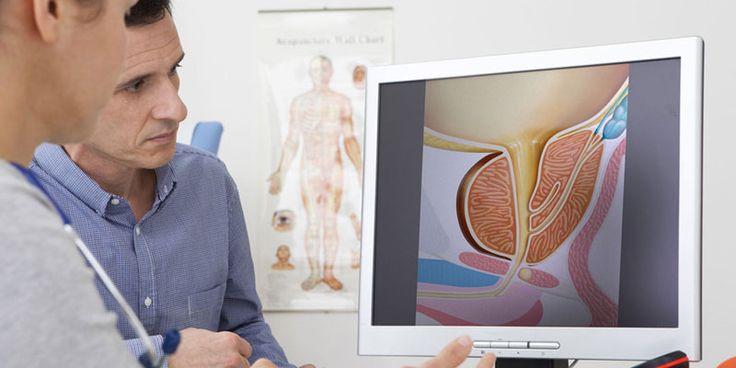 Afecțiune inflamatorie a prostatei, cu simptome foarte neplăcute, prostatita își…