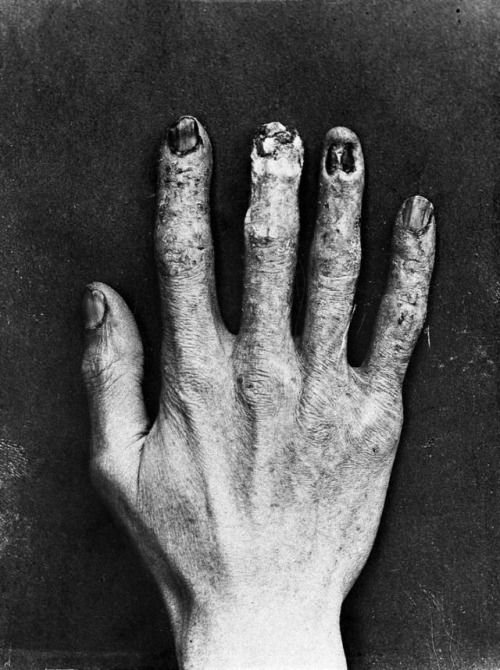 The hand of an early X-Ray technician, showing obvious radiation burns from the process required for calibration. Clarence Madison Dally, a glass blower who worked with Thomas Edison, would test X-Ray tubes on his own hands. He would later die after developing an aggressive cancer in his hands, which also resulted in him having both of his arms amputated in an unsuccessful attempt to save his life.