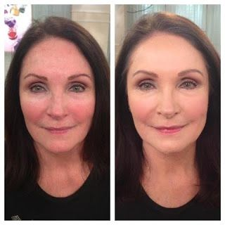 Before and After  Anti-Aging Full Coverage Physical