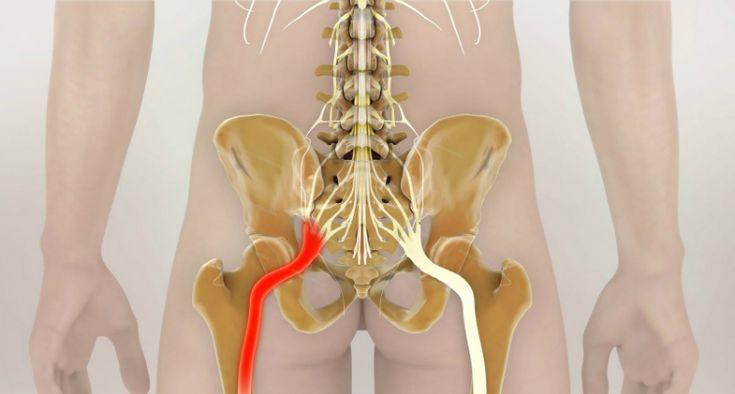 Ako odblokovať sedací nerv: 2 jednoduché spôsoby na odstránenie bolesti…
