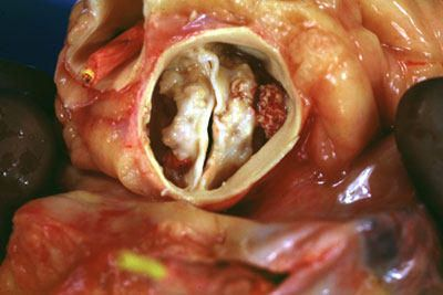 Bicuspid Aortic Valve, Aortic Bicuspid Symptoms Valve