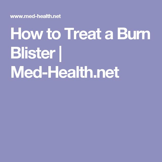 How to Treat a Burn Blister | Med-Health.net