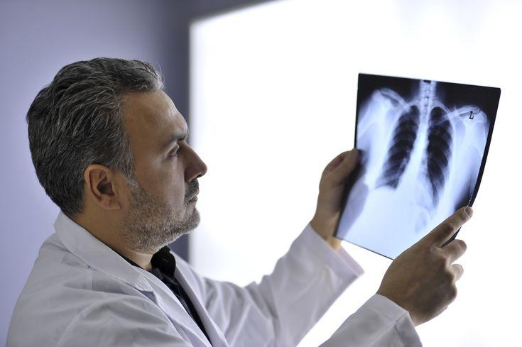 Le mésothéliome est un cancer lié à l'amiante. Jusqu'à présent, le pronostic était très sombre. Mais de nouvelles stratégies thérapeutiques se profilent.