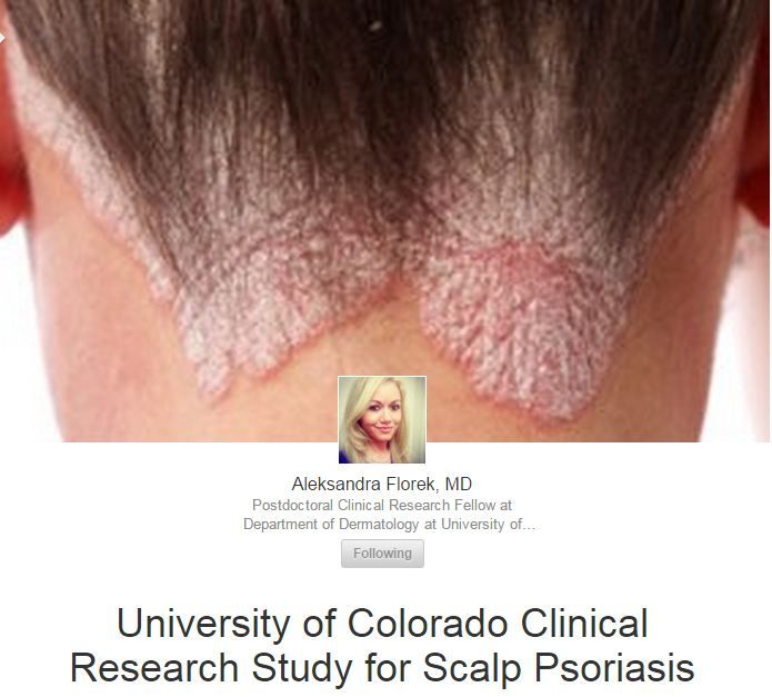 #Psoriasis - There is a clinical study in #Denver, #Colorado for persons that have had moderate-to-severe #ScalpPsoriasis for at least six months.  The information about the clinical trial was added to Pinterest by BrettMD without prior consultation or approval. My reasoning is that after being IRB approved, and shared online, I can share it elsewhere since it is not copyright. Please contact me with comments or suggestions at http://drsocial.org Kind regards, -BrettMD #Scalp #Psoriasis