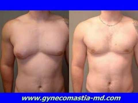 Male Breast Reduction, GYNECOMASTIA THAILAND Review and Cost A Real Solution To …