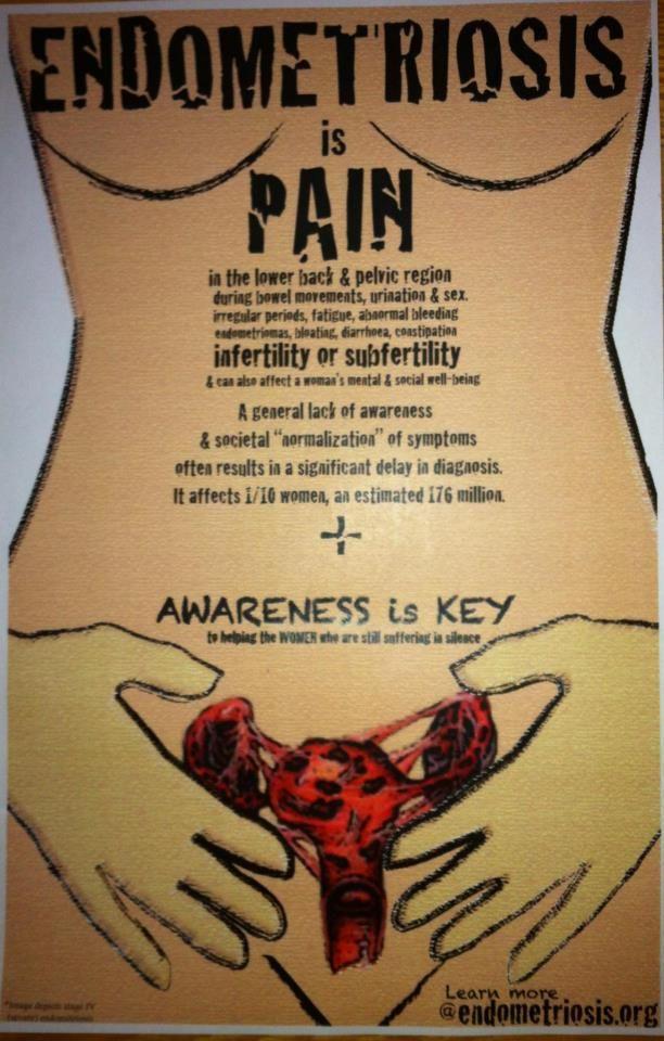 Clomid bad endometriosis