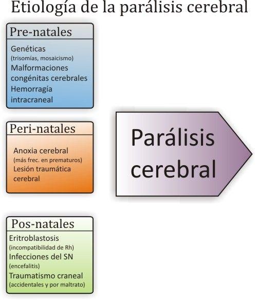paralisis cerebral infantil cerebro - Buscar con Google