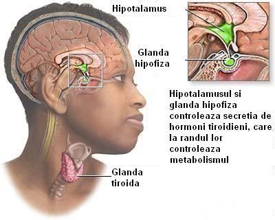 Afectiunile tiroidiene  sunt in general mai des intalnite la femei decat la barbati. De cele mai multe ori, femeile ignora simptomele, pun...