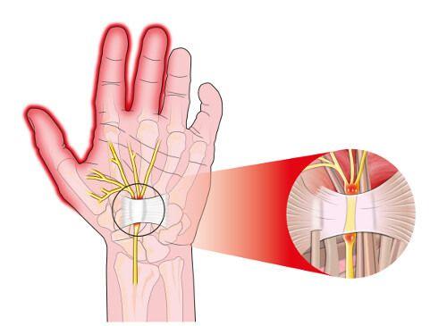 手根管症候群の痛みを軽減する方法