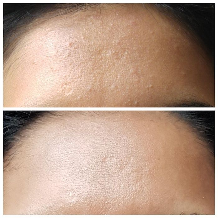 One Reddit User May Have Discovered A Holy Grail Product For Removing Whitehead Blemishes From Skin Click Here To See How Skin Cure Blemished Skin Whiteheads