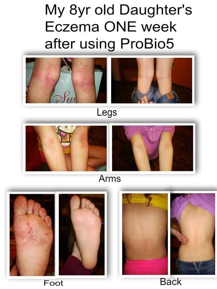 Check out the results of a fellow Plexus ambassador's 8 year old daughter, who has suffered with severe #eczema since the age of 3! Not ONE cream was used during these 6 days... Just one of our ProBio5's at night before bed!!! Plexus is sooooo much more than weight loss. So many lives changed! Ambassador #177206 ‪#‎apinklifeisabetterlife‬