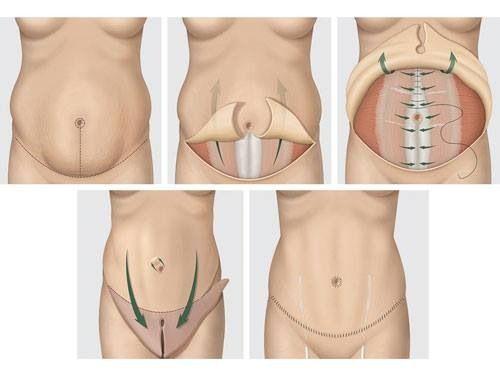 Abdominoplastia ( plastica da barriga )  www.clinicachrisostomo.com.br