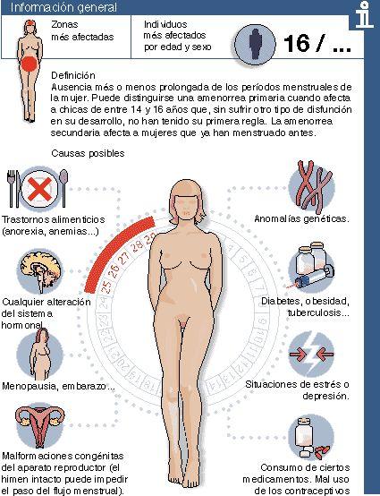 La amenorrea es la ausencia de la menstruación porque nunca comenzó o porque se interrumpió posteriormente. Puede ser normal (fisiológica) o ser indicativo de enfermedad (patológica). En este último caso, la amenorrea no es el diagnóstico, sino que es un síntoma de una enfermedad anatómica, genética o neuroendocrina.  La siguiente imagen muestra las razones que ocurre amenorrea.