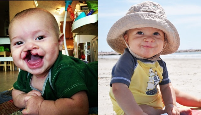 Beautiful blog for those who have given birth to a child with a cleft lip / palate