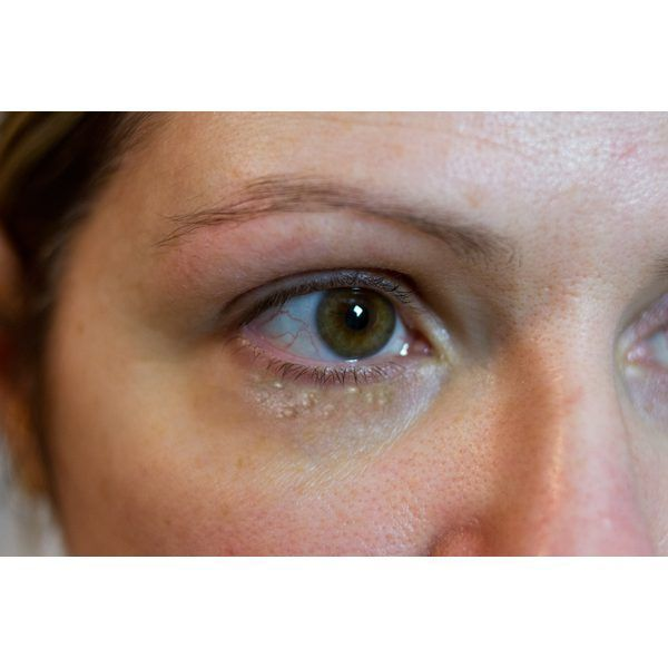 Images of White Bumps Under Eyes - #rock-cafe