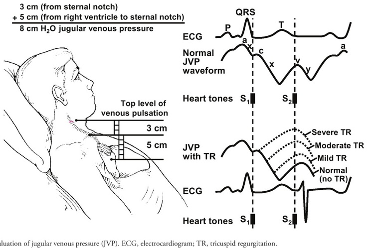 evaluation of jugular venous pressure