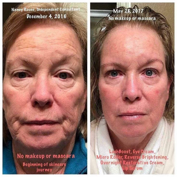 REVERSE BRIGHTENING is for dullness and dark marks with clinically-proven results!   Percent who experienced improvement in the appearance of the following skin concerns*: brightness - 92% smoother texture - 92% brown spots - 84% even skin tone - 76% fine lines - 60%  *Based on an 8-week independent US consumer study of 20 participants. Results may vary depending on multiple factors: age, gender, skin type and condition, concomitant products used, health history, location, lifestyle and…