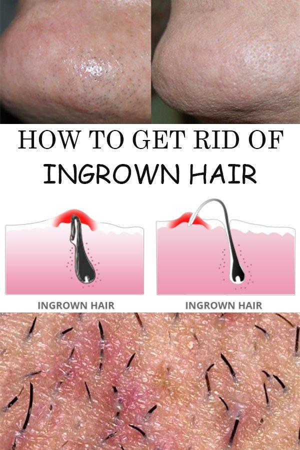 How to Get Rid of Ingrown Hair Naturally  #ingrown #howto #getridof #skincare #ingrownhair