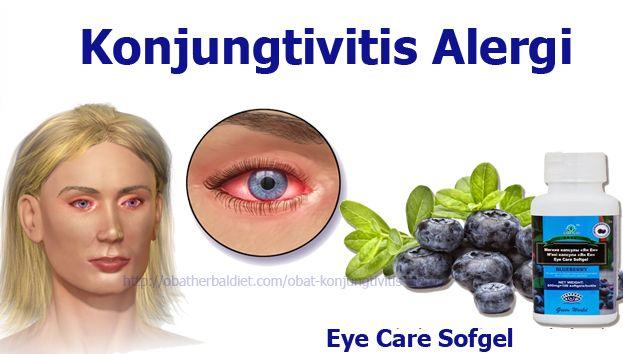 Obat Konjungtivitis Alergi -, Eye Care Softgel obat herbal alami Tradisional berkhasiat mengatasi, mengobati, dan menyembuhkan berbagai penyakit mata. http://obatherbaldiet.com/obat-konjungtivitis-alergi/