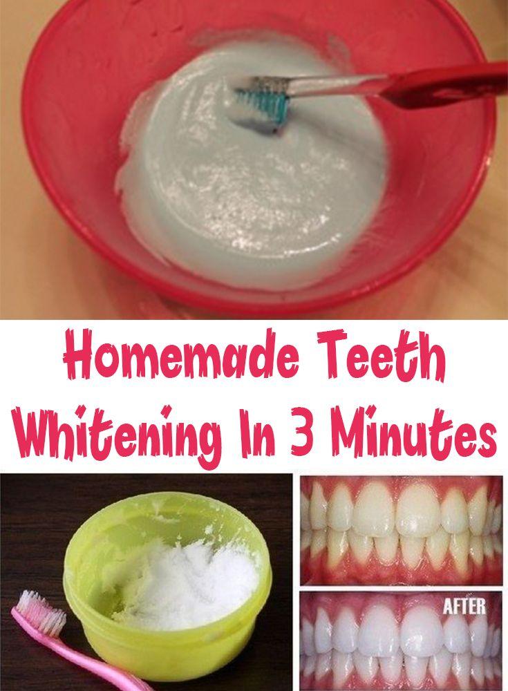 Mejores 1307 imgenes de teeth whitening en pinterest dientes homemade teeth whitening in 3 minutes solutioingenieria Image collections