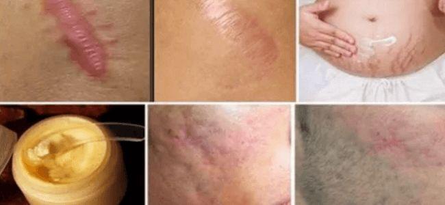 Elimina cualquier cicatriz de su cuerpo en menos de un mes
