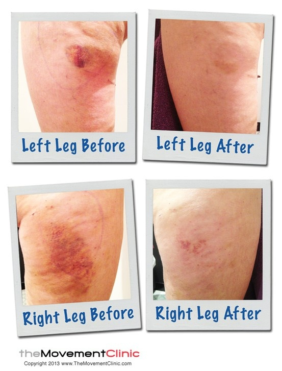 Liposuction Before And After Photo Of Manual Lymphatic