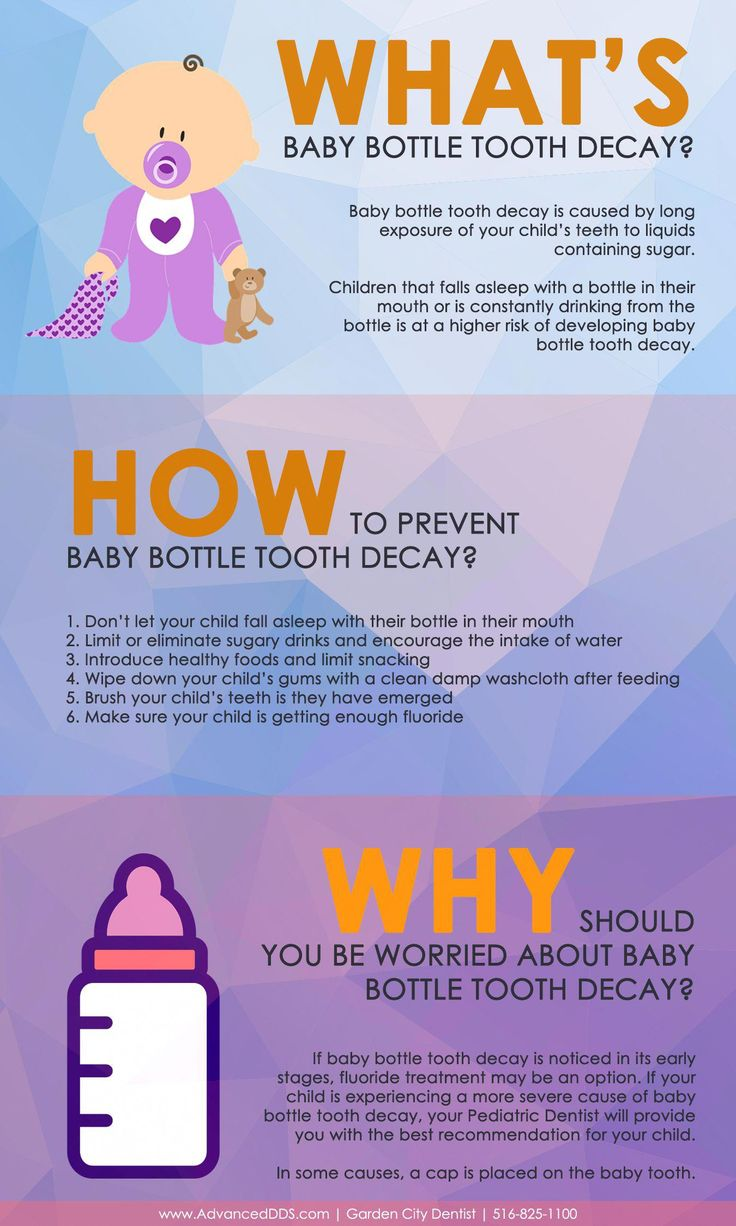 Baby Bottle Tooth Decay Infographic
