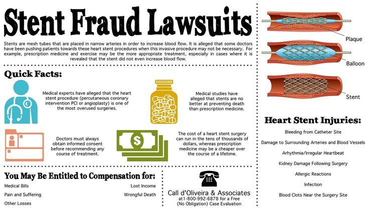 Stent Fraud Lawsuits Infographic. Stents are mesh tubes that are placed in narrow arteries in order to increase blood flow. It is alleged that some doctors have been pushing patients towards these heart stent procedures when this invasive procedure may not be necessary. Heart Stent Injuries: Bleeding from Catheter Site, Arhythmia, Irregular Heartbeat, Infection or Blood Clots. #Heart_Stent #Percutaneous_Coronary_Intervention #Angioplasty #Heart_Surgery