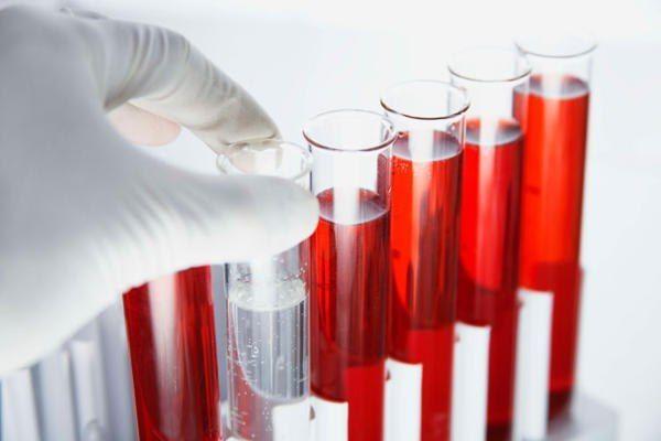 Анализ крови на гормоны - норма, расшифровка