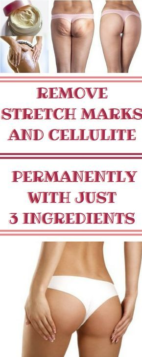 What is cellulite? It is the gathered fat tissue on some body parts, framing dimples on the skin and making it resemble an orange peel. The standard causes are less than stellar eating routine and …