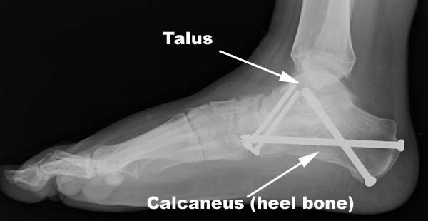 In Situ Tarsal Metatarsal Dowel Arthrodesis with Trephine Reamers and Cancellous Bone Plugs: A Technique Guide and Case Report