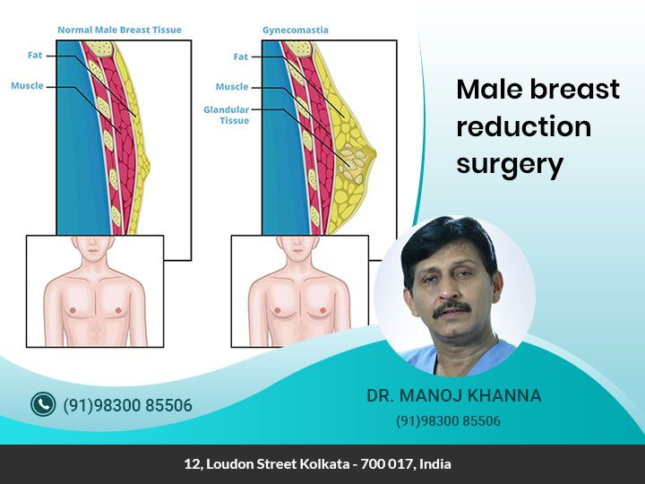 Opt For The Best Male Breast Reduction Surgery In Kolkata