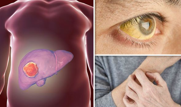 Liver cancer symptoms - seven signs of the DEADLY condition