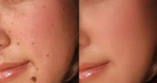 home remedies for moles removal