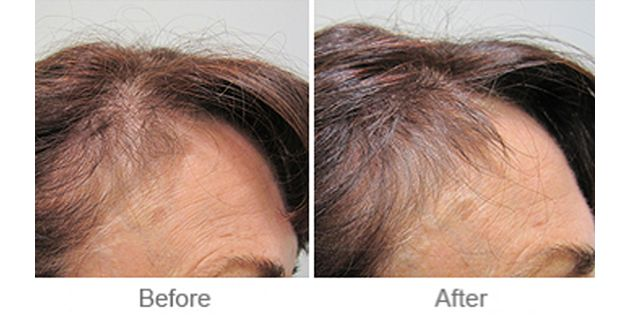 Alopecia areata is an autoimmune condition. This is a condition consisting of the body attacking itself. It results in isolated patches of hair loss mainly affecting the scalp and beard with skin appearing very shiny. There is preservation of the hair roots and their orifices. In the absence of scarring there is the potential for hair to grow back.